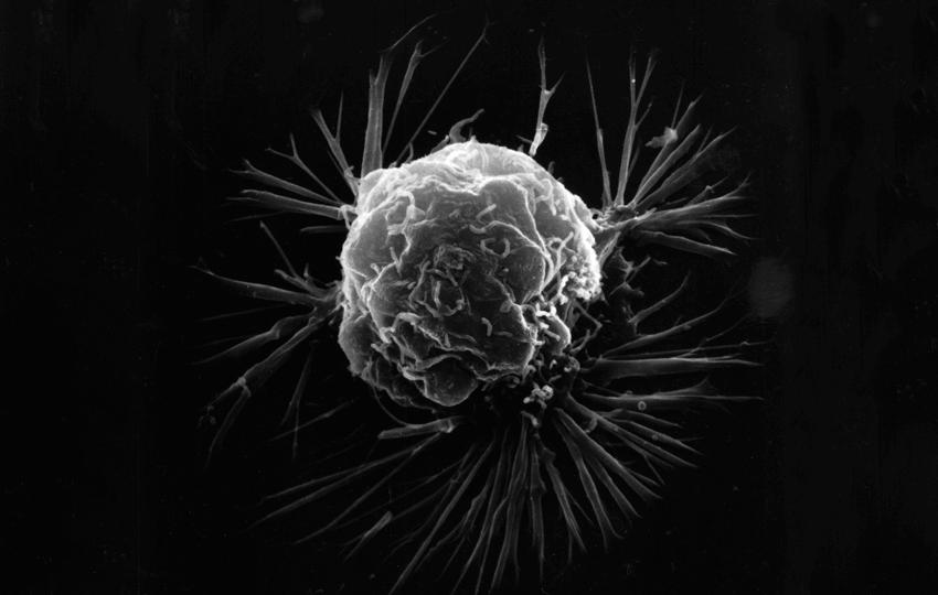 Anticancéreux agissant sur un nouveau principe (Inhibition du récepteur P2X7)